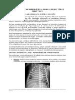 Características Radiológicas Normales Del Tórax Pediátrico - 4ta Consulta