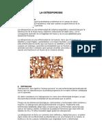 La Osteoporosis Monografia