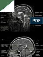 Cerebro Normal