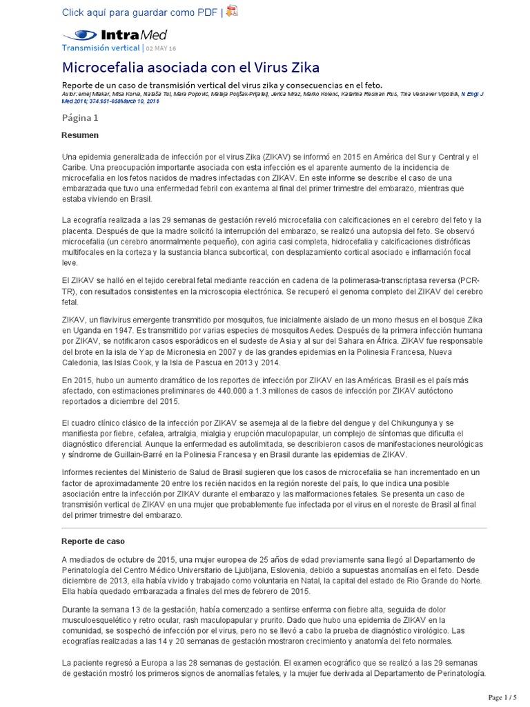 Microcefalia Asociada Con El Virus Zika