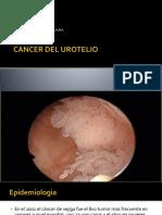 Cancer de Urotelio UPT 2017