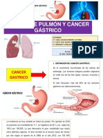 Cancer de Pulmon y Gastricoo Terminado