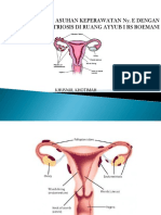 ppt endrometriosis