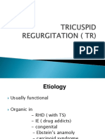 TRICUSPID REGURGITATION ( TR).ppt