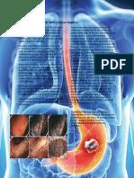 Cancer Gastrico Bueno (1)