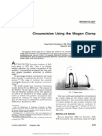 Circumcision Using the Mogen Clamp