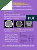 Complicaciones de Meningoencefalitis Por s. Pneumoniae