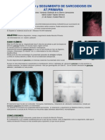 Diagnóstico y seguimiento de sarcoidosis en APS