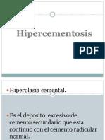 HIPERCEMENTOSIS