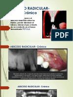 Absceso Radicular Crónico