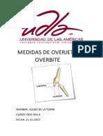 Medidas de Overjet y Overbite