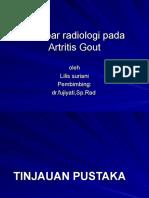 187964599-Gout-Artritis-Ppt.ppt