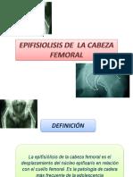 EPIFISIOLISIS.pptx