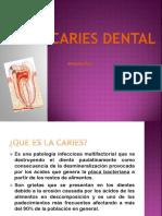Caries Dental Pato