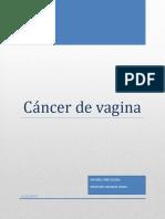 Cancer Vagina