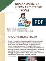 Terapi Akupunktur Untuk Penyakit Stroke (Cva)