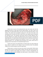 38688220 a Case Study on Rectal Adenocarcinoma