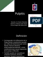 pulpitis1