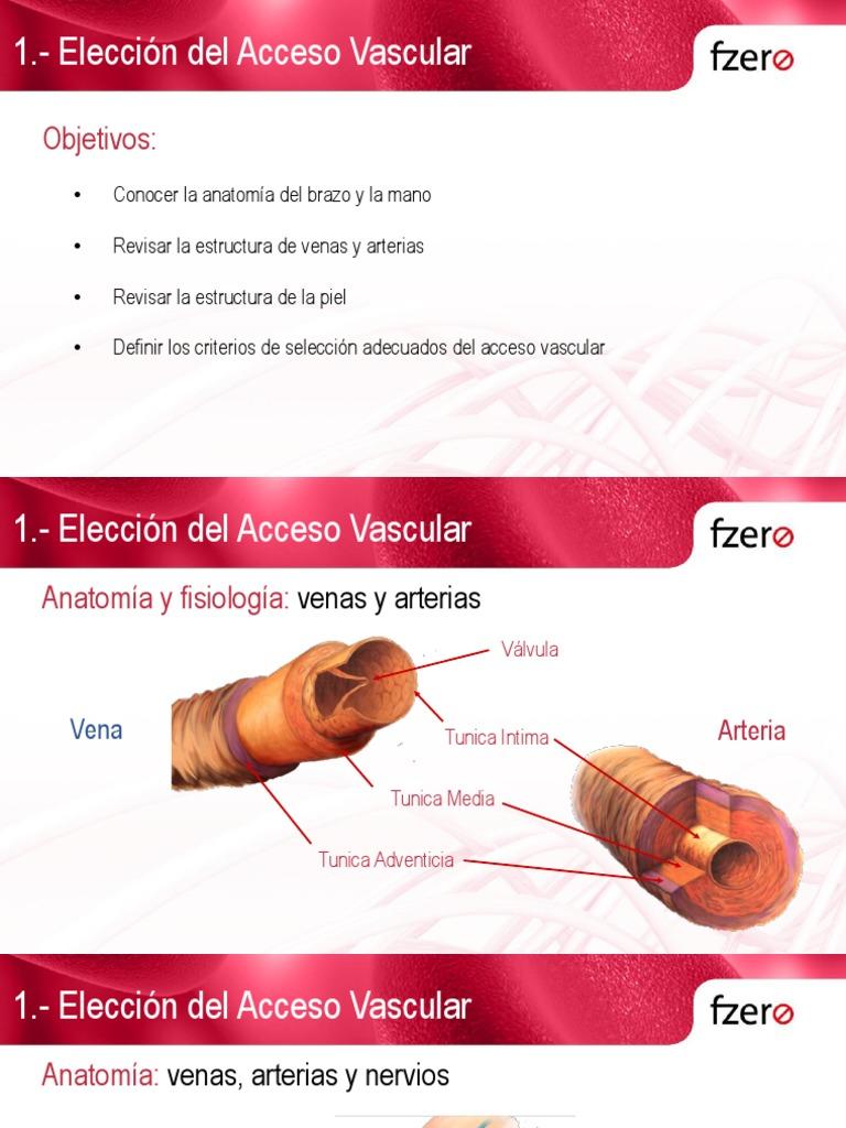 1 Elección Del Acceso Vascular