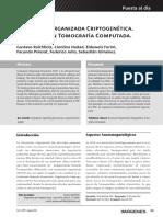 4 Neumonia Organizada Criptogenetica