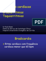 12 - Bradiarritmias