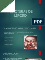 1. Fracturas de Leford