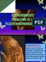 Desprendimiento Prematuro de Placenta - HPBR