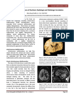 11.Vascular Malformations of the Brain.pdf