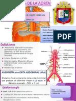 1. Aneurisma de Aorta