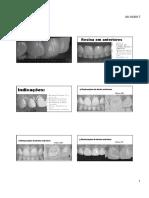 Restauracoes Em Dentes Anteriores (1)