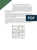 Aumento de La Aurícula Izquierda y Fibrilación Auricular