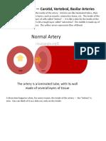 Carotid Artery Dissection