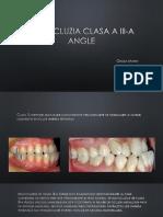 Angle Clasa 3