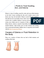 Acupressure Points to Treat Swelling&Edema