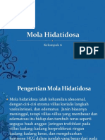 Mola Hidatidosa.ppt