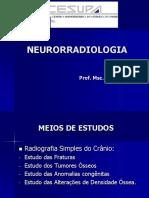Aula - 10 Neurorradiologia