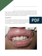caso clinico Pápulas bucales