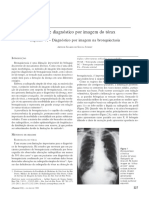 RX - (Apr) Tórax Bronquiectasia