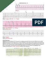 Exercicios de ECG Gabarito