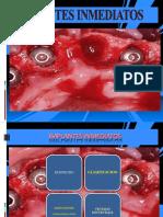 implantesinmediatospowerp-140813120010-phpapp01