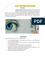 Cataract Extraction the Procedure and Why It is Done