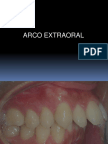 ARCO EXTRAORAL.ppt