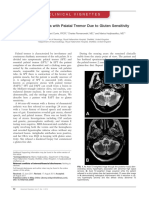 Progressive Ataxia With Palatal Tremor Due to Gluten Sensitivity (2012)