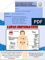 LUPUS y Artritis