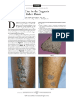A Novel Visual Clue for the Diagnosis of Hypertrophic Lichen Planus