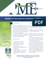 PME Displasia de Cadera
