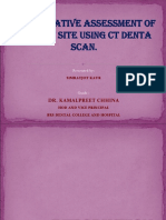 Preoperative Assessment of Implant Site Using Ct Denta