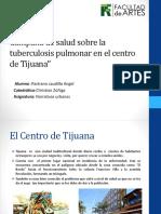 Campana de Salud Tuberculosis Pulmonar Artes