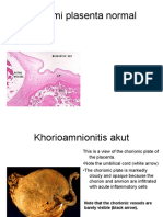 Patologi Plasenta 2015.ppt