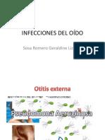 infecciones del oido